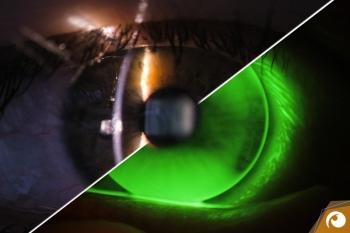 Professionelle Kontaktlinsenanpassung | mit der Spaltlampe betrachten wir Ihre Augen mit bis zu 40-facher Vergrößerung